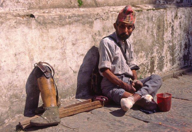 Lepra para sobrevivir, Nepal